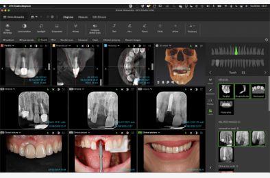 DTX Studio - nowa platforma do diagnostyki 2D i 3D