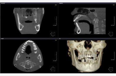 06.06.2020. - Diagnostyka rtg w gabinecie stomatologicznym, kompendium wiedzy - WEBINAR LIFE
