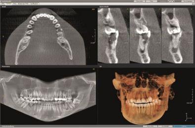 20.03.2021. - Diagnostyka RTG w endodoncji - szkolenie